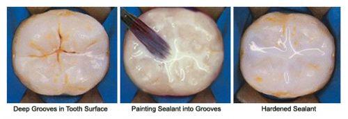 03 Dental Sealant نوشته