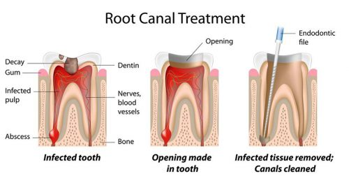root canal 1 نوشته